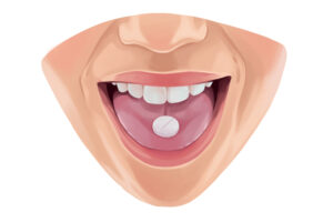 Drawing of a woman's mouth with an oral conscious prescription pill on her tongue